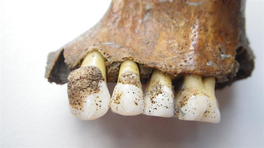 Image: Investigating periodontal disease throughout history by analysing dental calculus (mineralized plaque) preserved on archaeological skeletons from Yorkshire