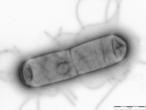 Scanning electron micrograph of Salmonella enterica Typhimurium