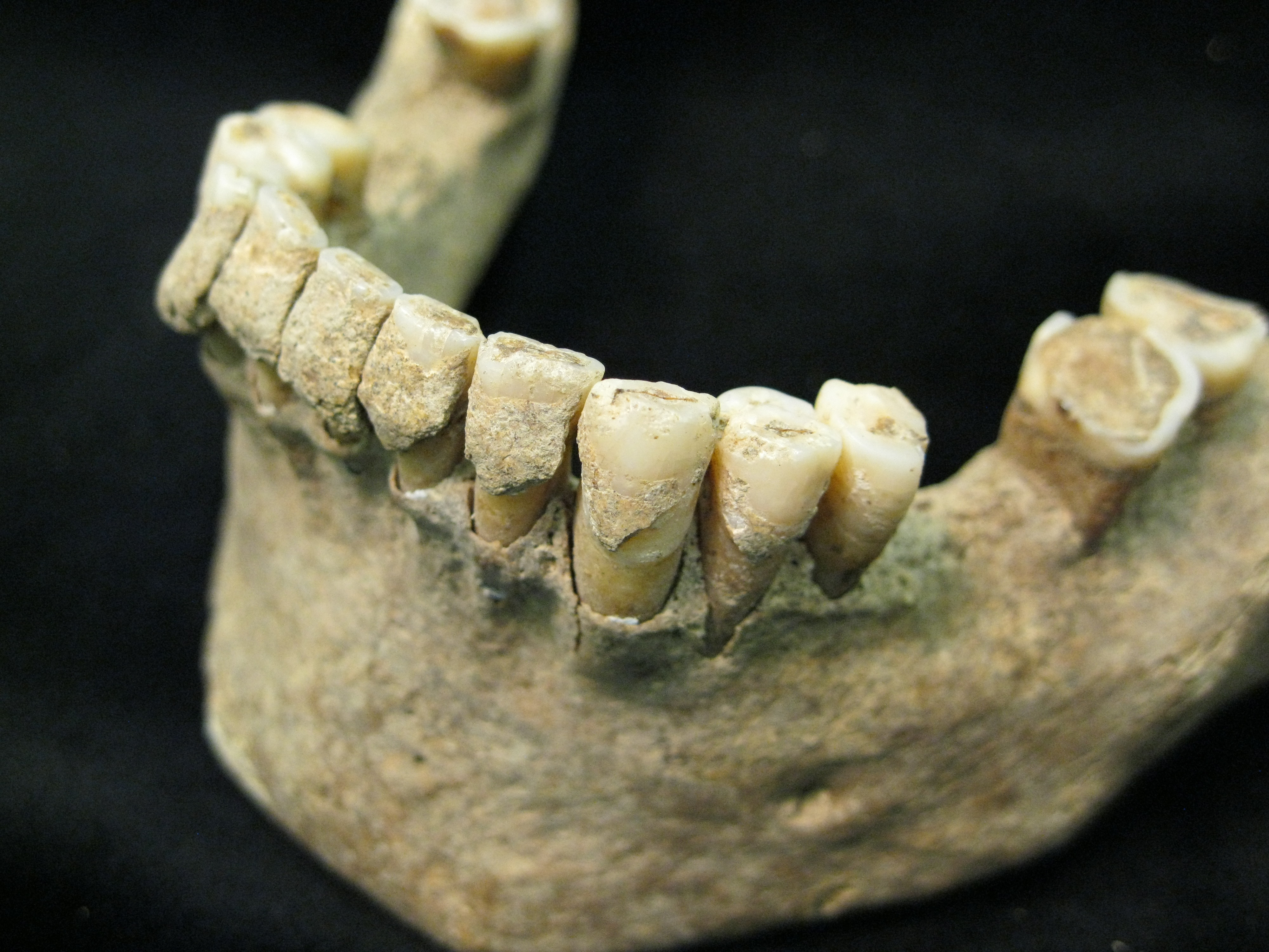 Image: Fossilised dental plaque (calculus) on the teeth of a middle-aged man from the Medieval site of Dalheim, Germany, ca. AD 1100. Photo credit: Christina Warinner.