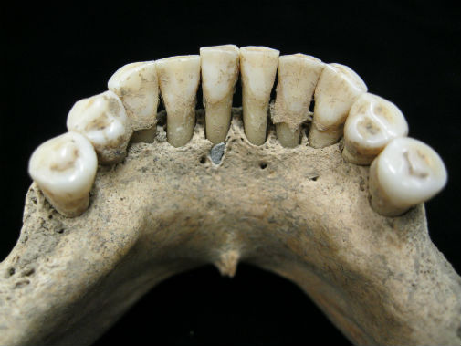 Dental calculus on the lower jaw a medieval woman entrapped lapis lazuli pigment. Photo credit: Christina Warinner