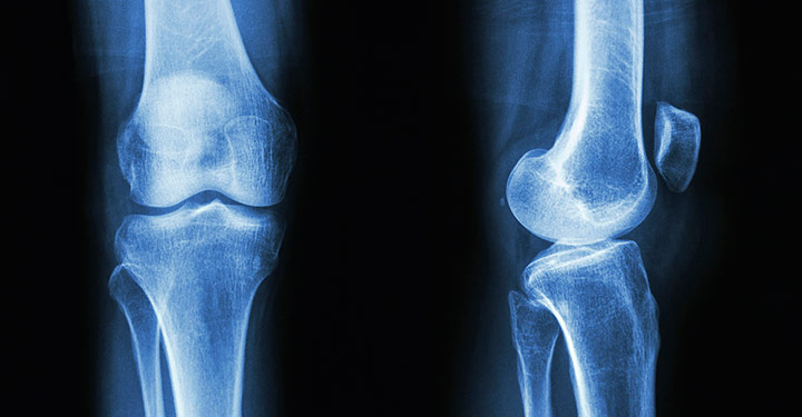 Using Stem Cells To Fight Osteoarthritis Pain Research